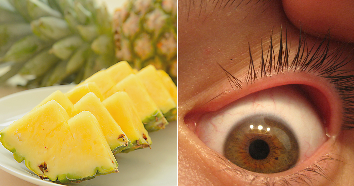 Eating pineapple daily can reduce eye floaters, study shows - Good Times